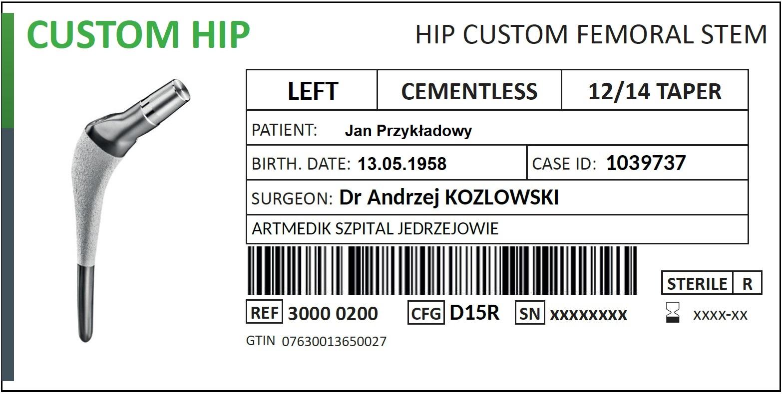 Planowanie - etykieta implantu